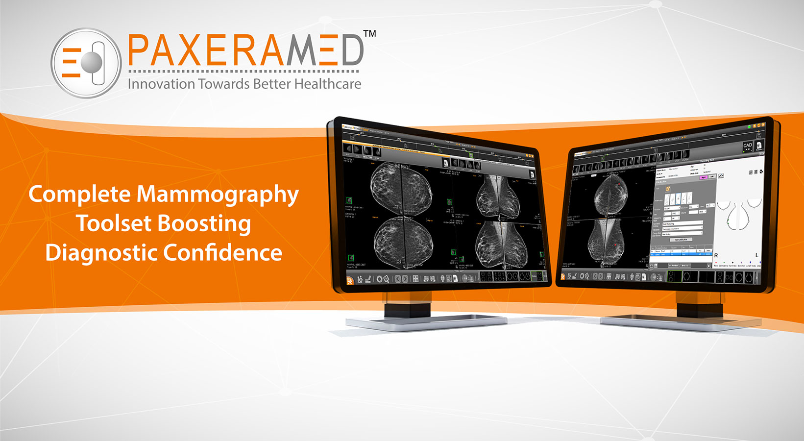 Complete Mammography Toolset Boosting Diagnostic Confidence